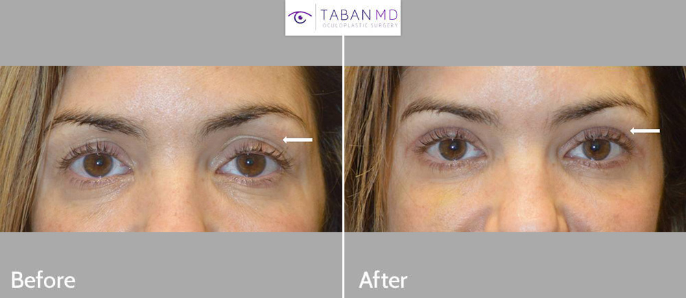 Beautiful woman underwent combined upper blepharoplasty (eyelid lift) and upper eyelid filler injection to create more youthful rested eyes.