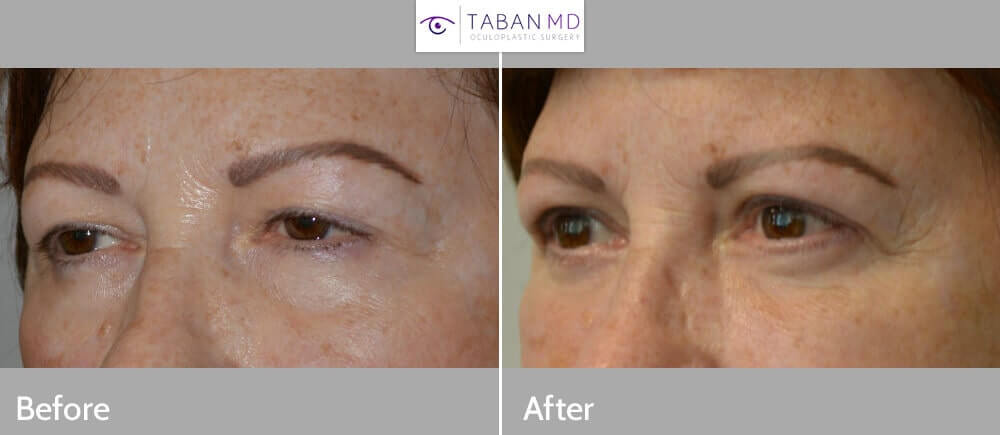 58 year old female, complained of heavy, puffy upper eyelids and under eye bags. She underwent cosmetic eyelid surgery including upper blepharoplasty (skin and some fat removed upper eyelids), upper eyelid ptosis surgery (muscle tightening to lift upper eyelids), lower blepharoplasty (to correct under eye bags via hidden inside eyelid incision) and brow support (using Brassiere technique), under local anesthesia in the office. Note youthful, more rested, natural results. Preop and 3 months postoperative photos are shown.