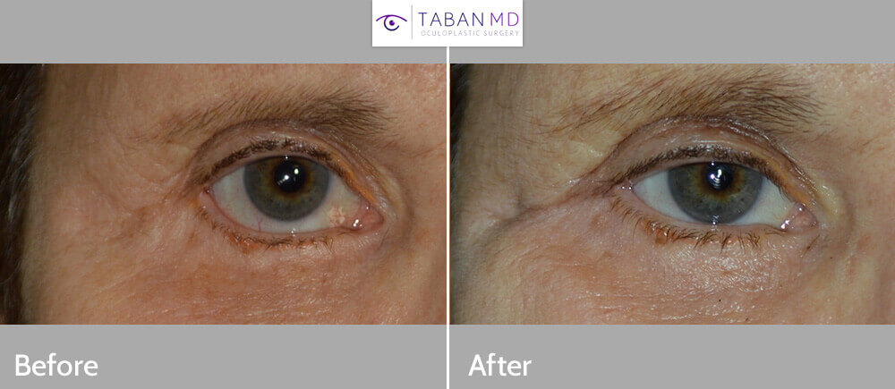 Middle age woman, with right lower eyelid retraction secondary to previous transcutaneous lower blepharoplasty (post-blepharoplasty eyelid retraction), now needing revision cosmetic eyelid correction. She underwent revision eyelid surgery to include right lower eyelid retraction repair (internal approach, with Alloderm graft, midface lift) and canthoplasty, giving more natural almond shape eye appearance. Before and 3 months postoperative photos are shown. (later she would also benefit from droopy upper eyelid surgery and eyebrow lift)