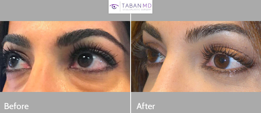 Young woman, bothered by under eye fat bags and dark circles, looking tired, under lower blepharoplasty (transconjunctival with fat repositioning) for more refreshed eye appearance.