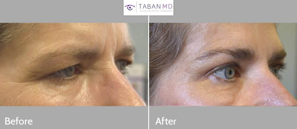 55 year old female, with droopy forehead/brows and excess upper eyelid skin, looking tired and angry, underwent endoscopic forehead lift and upper blepharoplasty. Before and 3 months after cosmetic surgery photos are shown.