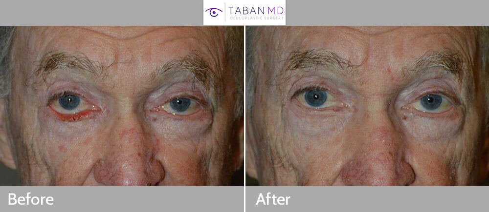 70 year old male, with right lower eyelid cicatricial ectropion (secondary to previous skin cancer surgery pulling the eyelid down), underwent right lower eyelid ectropion repair with skin graft. Note the lower eyelid is repositioned to nicely hug the eyeball with eyelashes in proper position, with natural result.