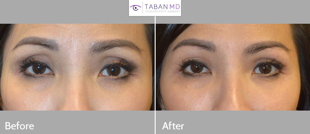 43 year old Asian female, with hollow sunken upper eyelids, underwent upper eyelid filler injection (using Belotero). Before and immediately after eyelid filler photos are shown.