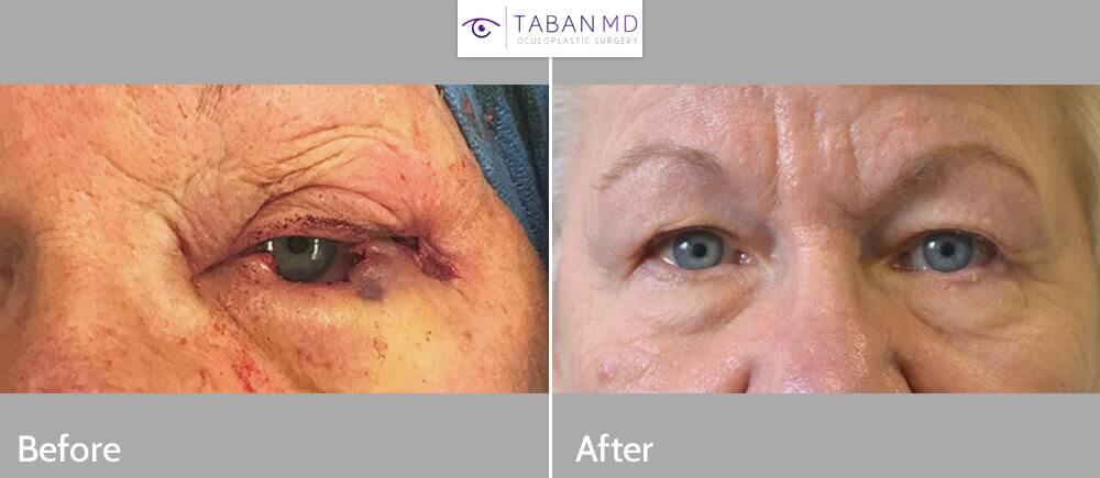79 year old female, with left lower eyelid basal cell carcinoma, s/p MOHs surgical removal, underwent left eyelid reconstruction. Before and 3 months after eyelid skin cancer surgery photos are shown.