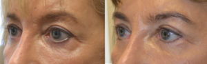 56 year old female, with significant lower eyelid retraction after botched transcutaneous lower blepharoplasty in Hungry, underwent lower eyelid retraction surgery with internal alloderm spacer graft and canthoplasty and eyelid scar revision. Before and 3 months after reconstructive eyelid surgery photos are shown.