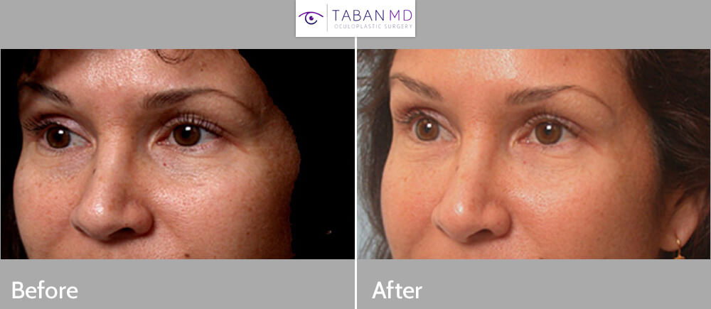 Before (left) and 1-month after (right) bilateral lower eyelid filler (Restylane) injection for dark circles.
