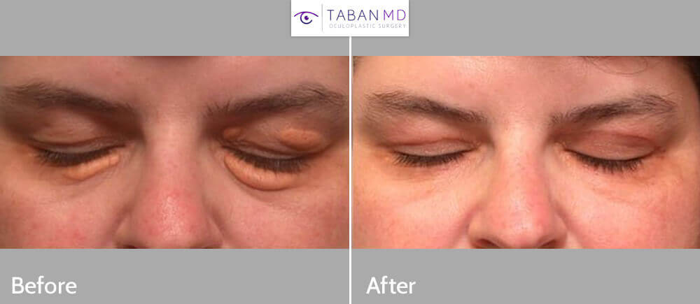 Before (left) and after (right) surgery for large eyelid xanthalasma (eyes closed).