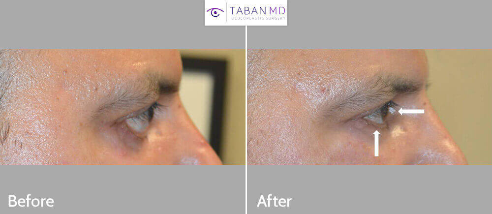 Middle age man with severe cicatricial lower eyelid retraction after transcutaneous lower blepharoplasty (latter by previous surgeon) underwent corrective revision surgery including lower eyelid retraction surgery with alloderm spacer graft and canthoplasty plus orbital decompression surgery. Before and 2 months after surgery photos are shown.