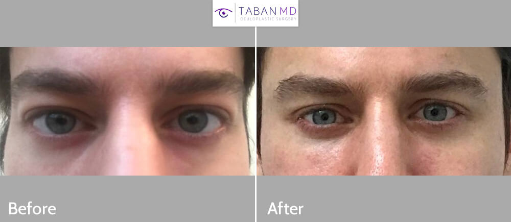 Young man underwent eye plastic surgery to alter eye shape to make more almond shaped including cosmetic orbital decompression and lower eyelid retraction surgery with canthoplasty (almond eye surgery). His before and after selfie photos are shown.