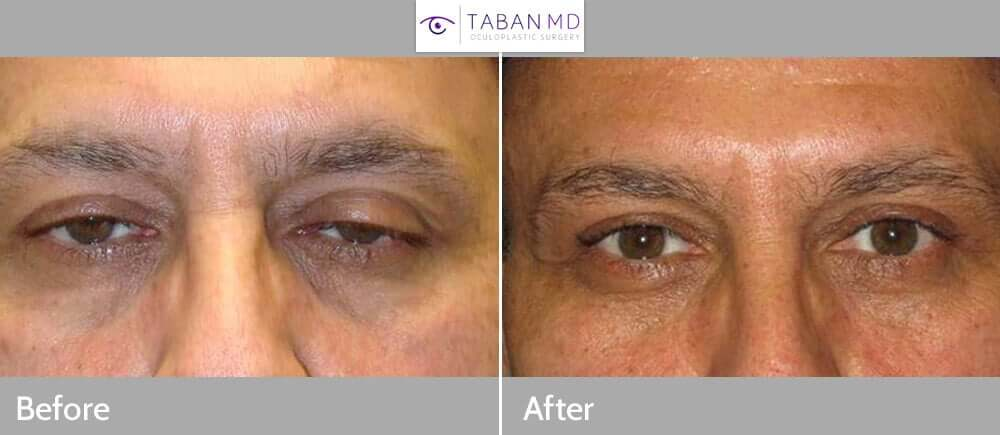 Middle age man, complained of tired eye appearance, which is secondary to upper eyelid ptosis. He underwent cosmetic upper eyelid ptosis surgery (internal approach), under local anesthesia in the office. Before and 3 months postoperative photos are shown.