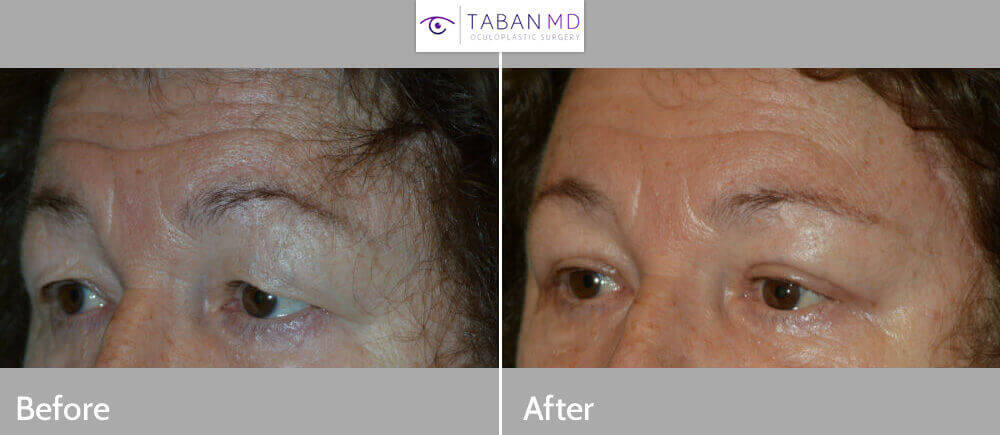 "60+ year old female, complained of heavy saggy upper eyelid with strain keeping eyes open. She was also unhappy with tired eye appearance. She underwent cosmetic eye plastic surgery including upper blepharoplasty (to remove excess puffy upper eyelid skin), droopy upper eyelid (ptosis) correction (to lift the upper eyelids; ""lid lift""), lateral eyebrow lift (using hidden pretrichial temple incision along the hairline), and lower blepharoplasty (transconjunctival with fat repositioning). Note natural results from the eyelid procedures, which were done under local/sedation anesthesia. Preop and 2 months postoperative photos are shown. (the temple scar is still healing)"