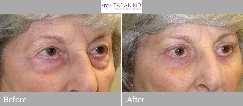 65+ year old female, underwent cosmetic upper blepharoplasty (to remove excess upper eyelid skin), lateral brow lift (using pretrichial approach with incision along temple hairline) and lower blepharoplasty (under eye bags removal), under local anesthesia. Note improved upper eyelids and brow contour with natural results. Preop and 3 months postoperative photos are shown.