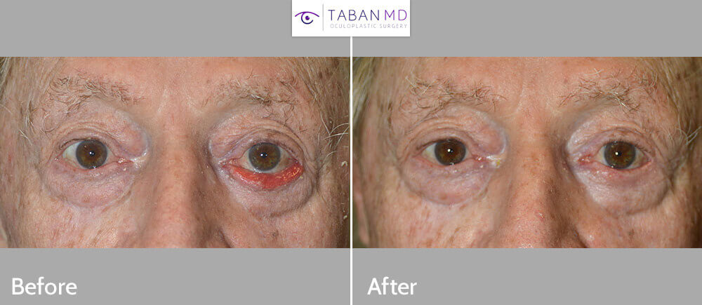 80+ year old man, with chronic left lower eyelid cicatricial ectropion (eyelid rolls out; droopy lower eyelid) with significant eye redness and irritation and discharge, underwent lower eyelid ectropion surgery with skin graft, under local anesthesia. Before and 3 months postoperative photos are shown.