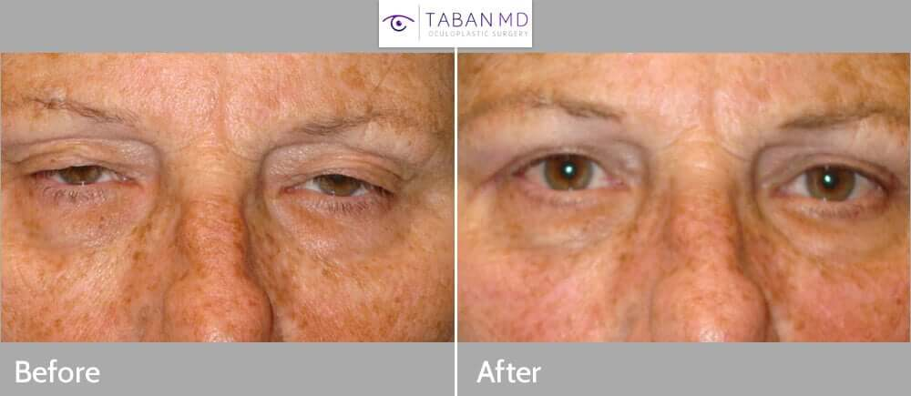 Middle age woman, with significant upper eyelid ptosis (droopy upper eyelids), interfering with her vision, along with excess upper eyelid skin, underwent upper eyelid ptosis surgery (eyelid lift) and upper blepharoplasty (removed excess skin), under local anesthesia. Before and 3 months postoperative photos are shown.