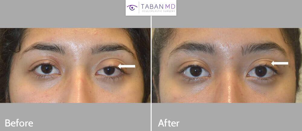 Young woman underwent scarless internal left upper eyelid congenital ptosis surgery.