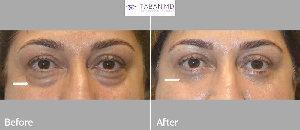 Middle age woman underwent lower blepharoplasty (transconjunctival technique with fat repositioning plus skin pinch excision) to improve both under eye fat bags and tear trough hollowness under eyes.