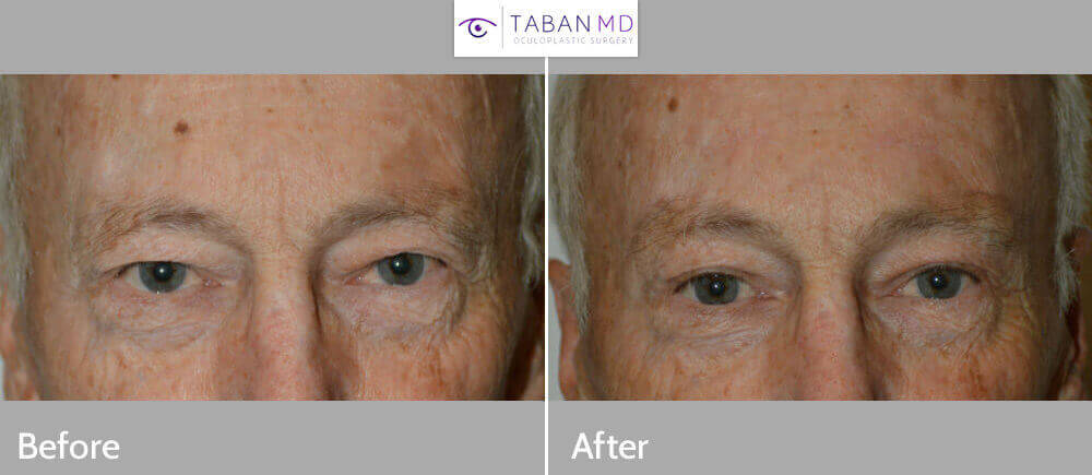 65+ year old male, with heavy saggy upper eyelids secondary to extra loose upper eyelid skin and heavy droopy forehead/brows. He underwent mid-forehead brow lift (incision hidden in the forehead folds) and male upper blepharoplasty (skin removed from upper eyelids). Preop and 3 months postoperative photos are shown.