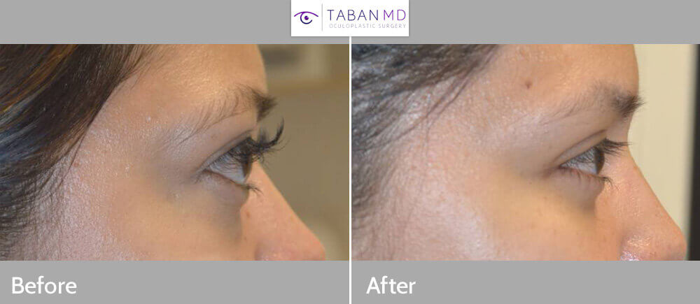 Graves Disease Thyroid Eye Disease Orbital Decompression bulgy Eye Surgery Before and After Patient 26 Dr.Taban Beverly Hills