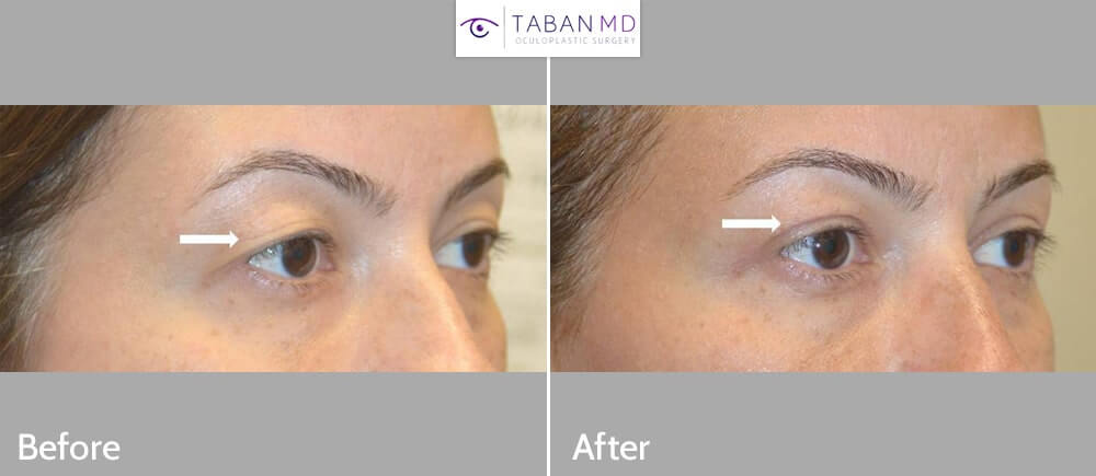 Young woman, with hooded saggy loose upper eyelid skin underwent upper blepharoplasty. Before, 1 week after, and 1 month after surgery results are shown.