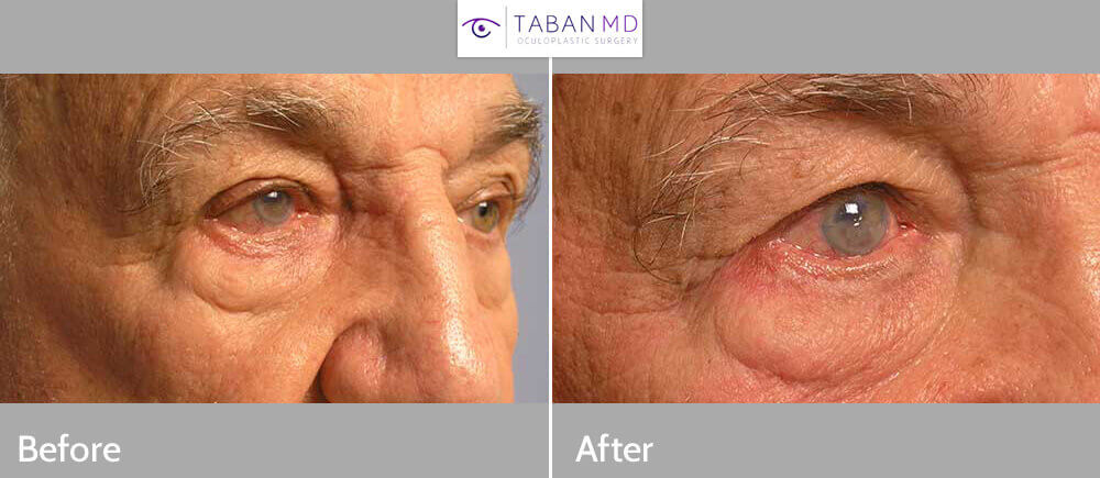 Before (left) and 3 months after (right photo) of right lower right eyelid entropion (eyelid turns in) surgery.