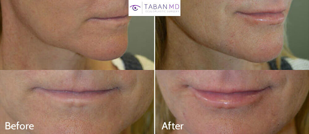 "Middle age woman, complains of saggy lower face and jowls, looking older. She did not want facelift, but rather wanted nonsurgical ""liquid facelift"". We notice uneven jaw line with hollowness between the chin and lower jaw area. She received 1cc Hyaluronic acid gel Filler along the jaw line, resulting in smoother jaw line and lower face shape and contour, giving more youthful facial appearance. The results are expected to last about 2 years. Before and immediately after filler injection photos are shown."