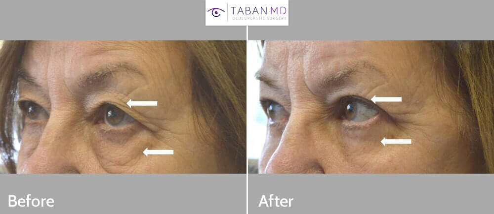 75+ year old woman, underwent cosmetic upper blepharoplasty (eyelid lift) and lower blepharoplasty to look more refreshed with natural results.