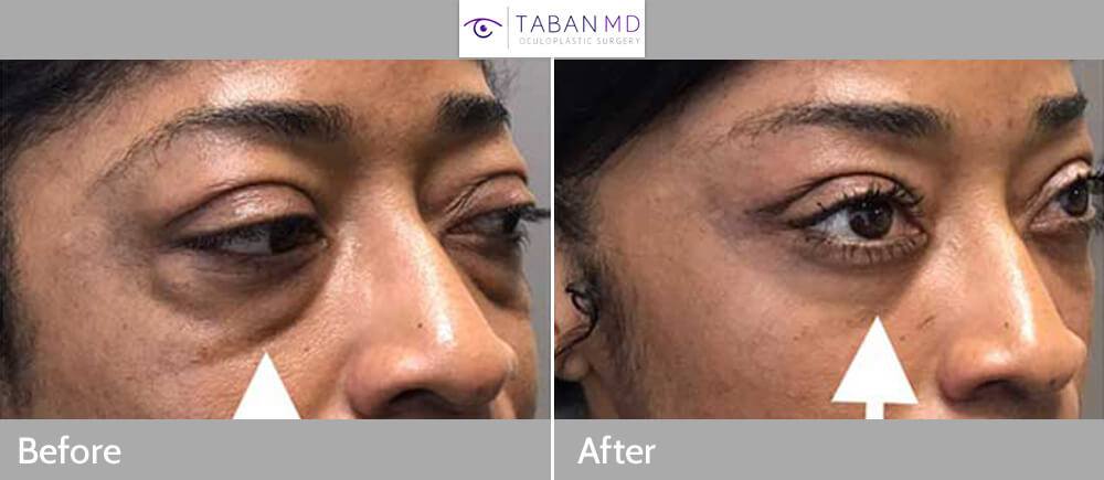 42 year old African American woman, underwent scarless lower blepharoplasty (transconjunctival technique with under eye fat bags repositioning) plus lacrimal gland repositioning. Before and 2 months after eyelid surgery photos are shown. Note more youthful eye appearance with natural results. Of importance, this patient has prominent eyes (negative vector) so care was taken to avoid lower eyelid retraction.