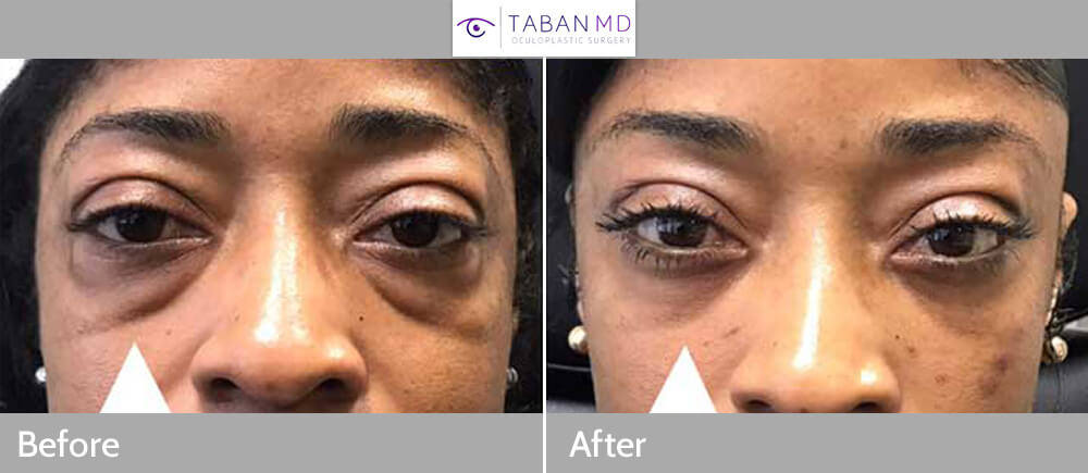 42 year old African American woman, underwent scarless lower blepharoplasty (transconjunctival technique with under eye fat bags repositioning) plus lacrimal gland repositioning. Before and 2 months after eyelid surgery photos are shown. Note more youthful eye appearance with natural results. Of importance, this patient has bulging eyes (negative vector) so care was taken to avoid lower eyelid retraction.