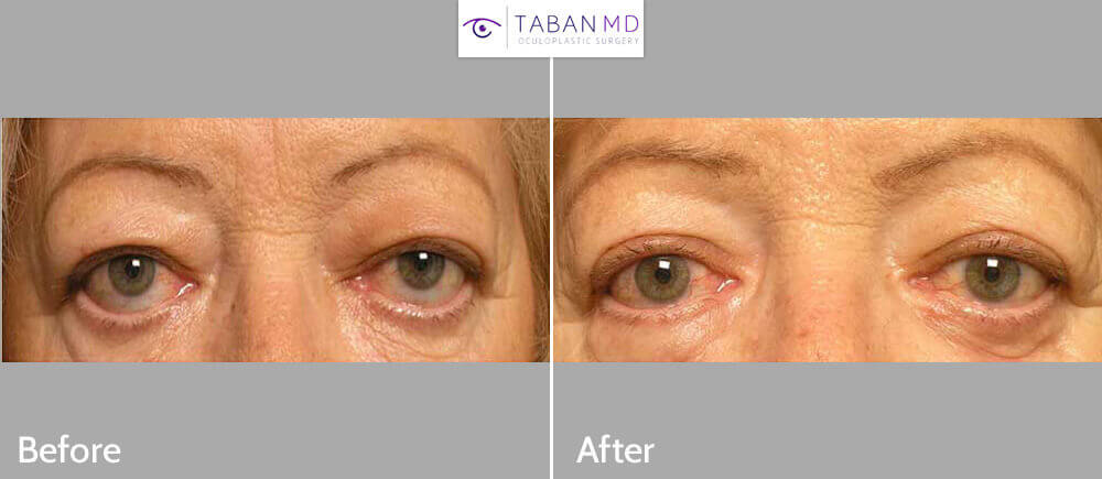 60 year old female, with lower eyelid retraction (droopy lower eyelids) and scleral show, underwent lower eyelid retraction surgery using internal dermis/fat graft. Note improved lower eyelid position.
