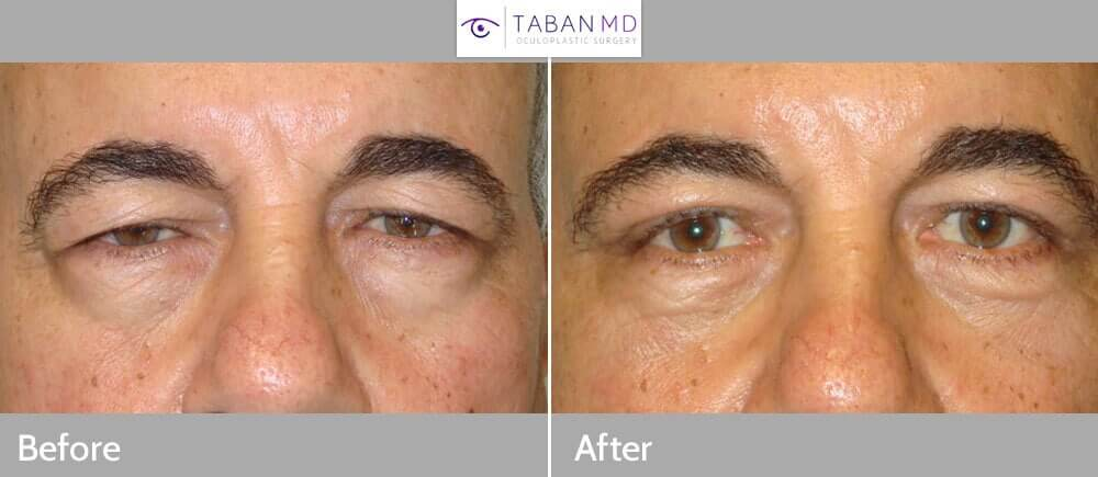 55 year old man, with heavy droopy upper eyelids and tired eye look, underwent upper eyelid ptosis repair (internal approach, to raise droopy upper eyelids) and male upper blepharoplasty (conservative upper eyelid skin removal), under local anesthesia. Note the eyes are more open, with natural appearance in the 3 months photo after eyelid surgery.
