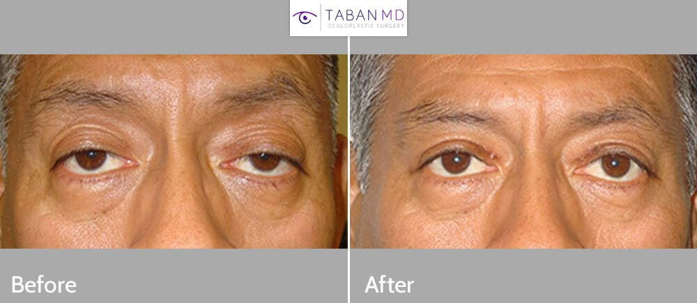Before (left) and after (right) 3 months after maximal ptosis treatment.