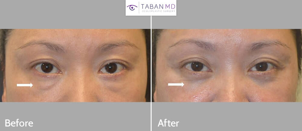 Middle age Asian woman underwent scarless lower blepharoplasty (transconjunctival technique with fat repositioning) to improve both under eye fat bags and tear trough hollowness under eyes.
