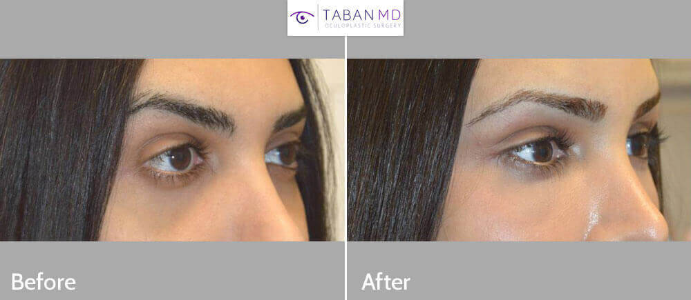 27 year old transgender female, underwent eye transformation almond eye surgery including lower eyelid retraction surgery with canthoplasty, infraorbital rim silicone implant, orbital decompression bulging eye surgery, and upper eyelid filler injection. Before and 1 month after surgery photos are shown.