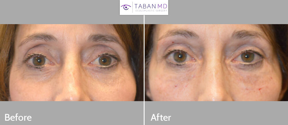 59 year old female, complained of sunken eyes with hollow upper and lower eyelids, which resulted from too much fat taken out from previous upper and lower blepharoplasty. She underwent upper eyelid and under eye filler injection to restore more youthful eye appearance. Before and immediately after eyelid filler injection photos are shown.