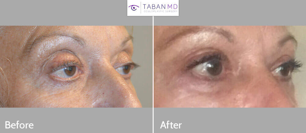 62 year old female, complained of rounded, sunken, hollow eyes after previous upper blepharoplasty and transcutaneous lower blepharoplasty along with droopy upper eyelids (ptosis). She underwent lower eyelid retraction surgery, canthoplasty, lower orbital rim tear trough implant, and upper eyelid ptosis correction followed later by upper eyelid filler injection. Before and 3 months after revision eyelid surgery photos are shown.