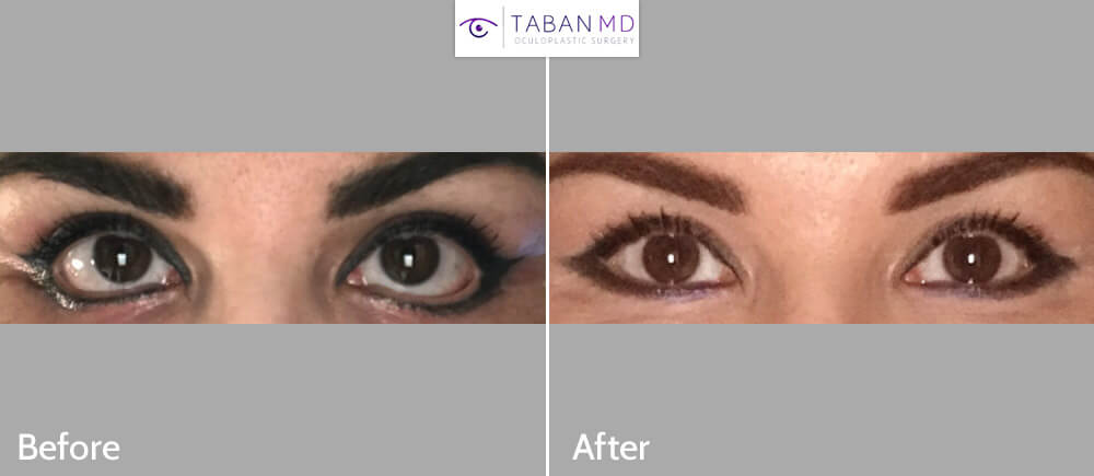 47 year old female, with lower eyelid retraction and ectropion after previous transcutaneous lower blepharoplasty, underwent reconstructive lower eyelid retraction repair. Before and 3 months after revision eyelid surgery photos are shown.