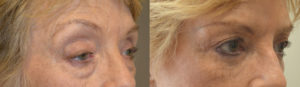 73 year old female, with eyelid aging, underwent droopy upper eyelid ptosis surgery, upper blepharoplasty, lower blepharoplasty (transconjunctival with fat repositioning and skin pinch) and lateral pretrichial brow lift, under conscious sedation. Before and 3 months after eyelid surgery photos are shown.