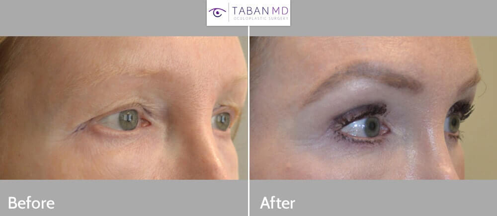 50 year old female, with saggy hooded upper eyelids, underwent cosmetic upper blepharoplasty (