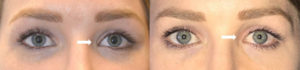30 year old female, with previous upper blepharoplasty resulting in left medial canthal web scar underwent left medial canthal scar revision with z-plasty epicanthoplasty technique. Before and 3 months after revision eyelid procedure photos are shown.