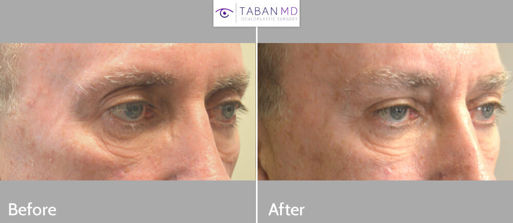 60+ year old male, with previous upper blepharoplasty (where too much fat was taken out, resulting in unnatural skeletanized feminine upper eyelids), received upper eyelid filler injection to restore more natural upper eyelid fullness.