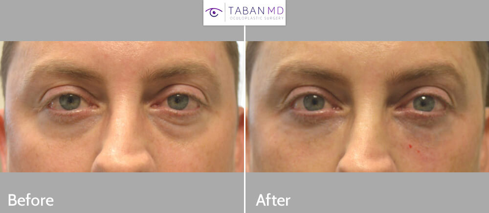 Young male, with under eye bags and tear trough hollowness with dark circles, underwent nonsurgical under eye filler injection. Before and immediately after eyelid filler injection photos are shown.