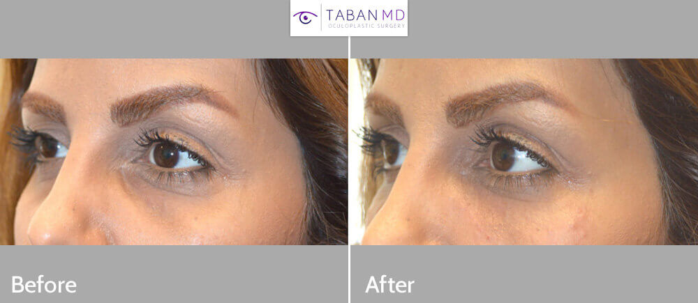 Young female, with inherited under eye tear trough deformity (hollowness) underwent nonsurgical lower eyelid filler injection. Before and immediately after under eye filler injection photos are shown.