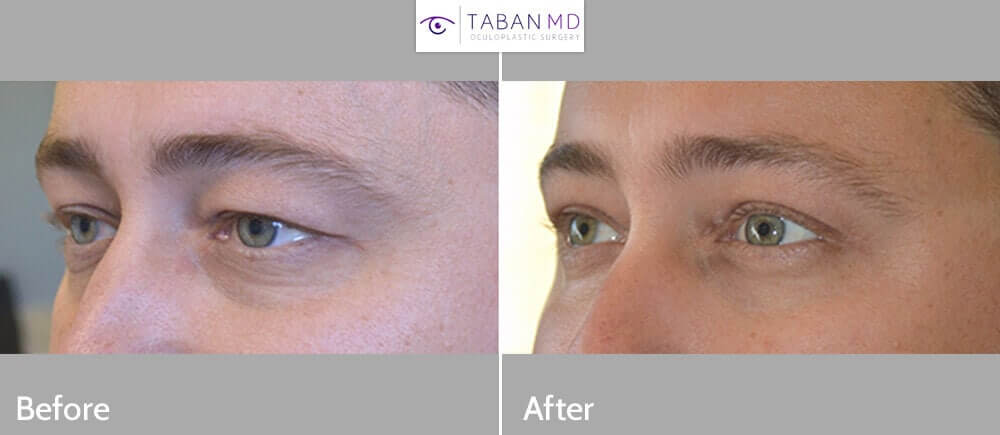 39 year old male, complained of saggy loose upper eyelid skin. He underwent cosmetic male upper blepharoplasty with natural results. Before and 2 months after cosmetic eyelid surgery photos are shown.