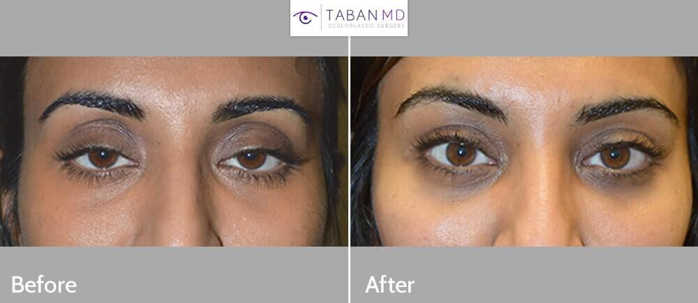 35 year old Indian female, complained of looking tired and older. She underwent scarless internal droopy upper eyelid ptosis surgery and upper eyelid fat injection. Before and 1+ year postoperative photos are shown.