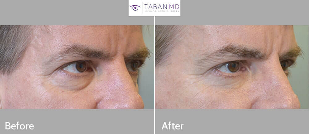 52 year old male physician, complained of looking tired with under eye puffiness and wrinkles. He underwent transconjunctival lower blepharoplasty with eye fat bags repositioning and skin pinch. Before and 2 months after cosmetic eyelid surgery photos are shown.