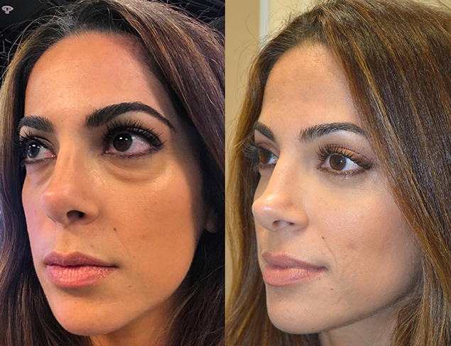 33 year old female, complained of under eye bags and dark circles and looking tired. She underwent scarless transconjunctival lower blepharoplasty with eye fat bags repositioning. Before and 2 months after cosmetic eyelid surgery photos are shown.