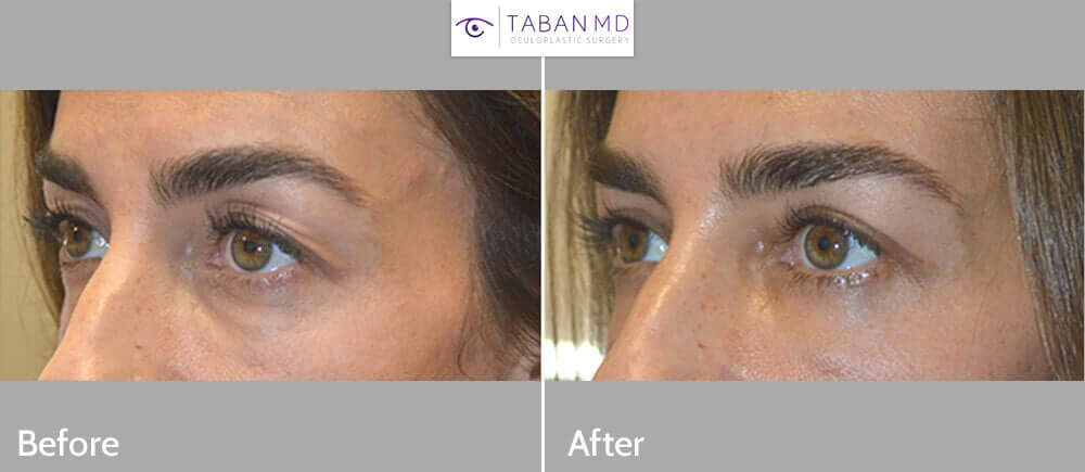44 year old female, complained saggy hooded upper eyelids with loose skin. She underwent upper blepharoplasty (eyelid lift). Before and 6 weeks after cosmetic eyelid surgery results are shown.