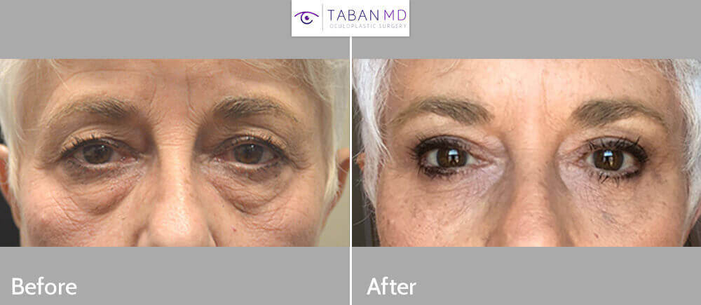 72 year old female, complained of looking older and tired with saggy droopy upper eyelids and eye bags. She underwent upper blepharoplasty, droopy upper eyelid ptosis surgery, transconjunctival lower blepharoplasty with fat repositioning with skin pinch and lateral pretrichial brow lift. Before and 3 months after eye plastic surgery photos are shown. (After photo is a selfie.)