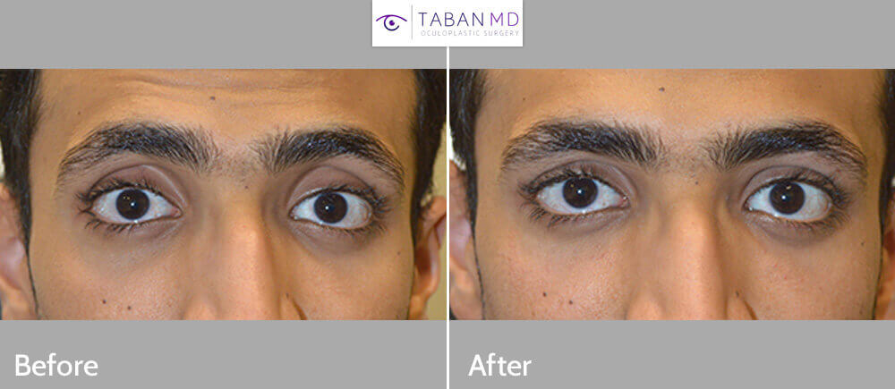 Young man, from Saudi Arabia, complained of sunken hollow eyes and dark circles. He underwent upper eyelid filler and under eye filler injection. Before and immediately after eyelid filler injection photos are shown.
