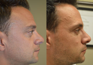 41 year old male, with inherited bulging eyes, underwent cosmetic orbital decompression, orbital rim silicone implant, and lower eyelid retraction surgery. Before and 4 months after eye plastic surgery photos are shown.